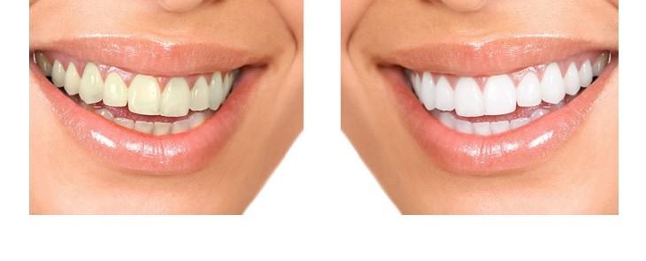 FUN but REAL: Biele zuby sú krajšie ako svetlosivé – to isté platí pre svorkovnice